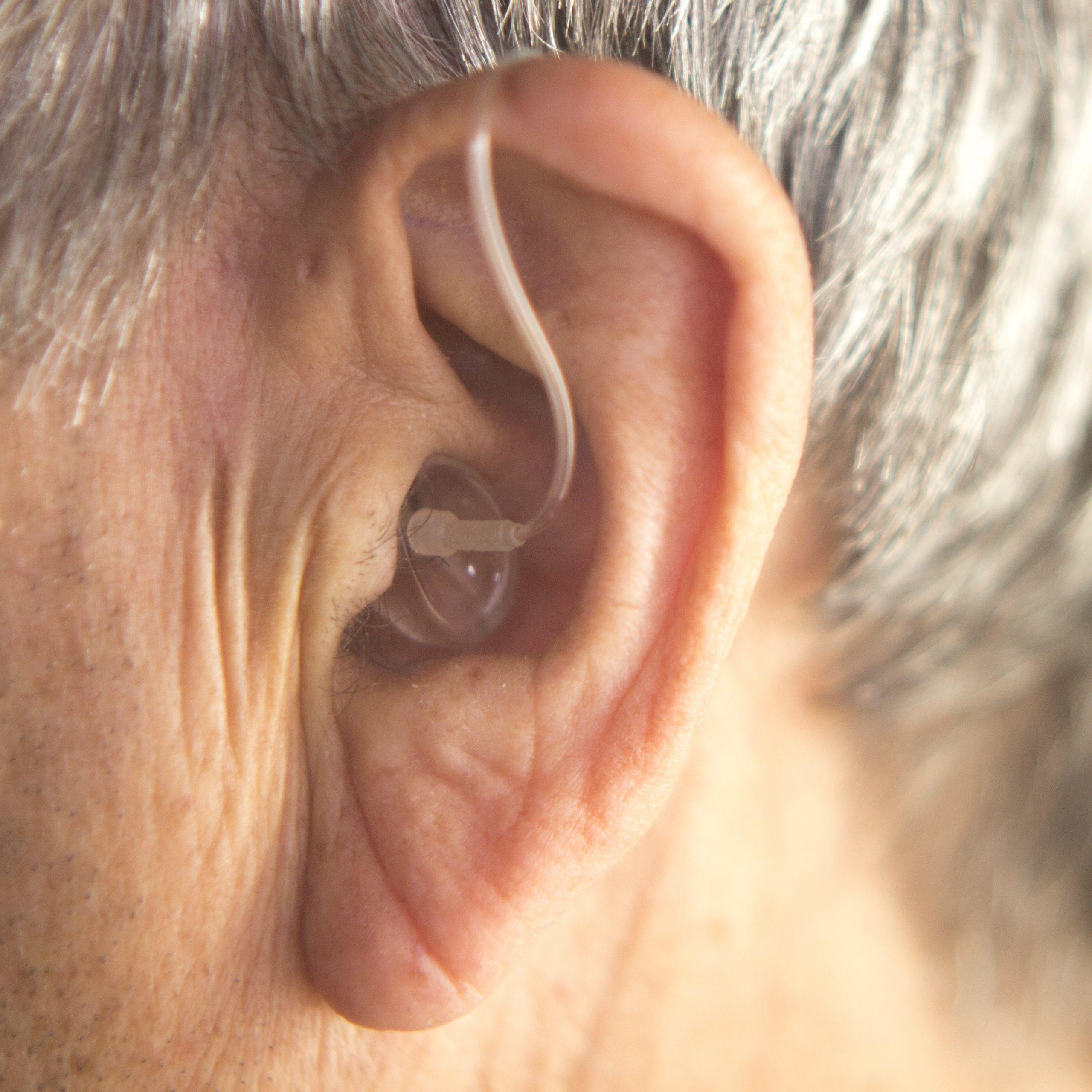 Eine diagonale Ohrläppchenfalte, auch Frank-Zeichen genannt, kann auf eine koronare Herzerkrankung hindeuten