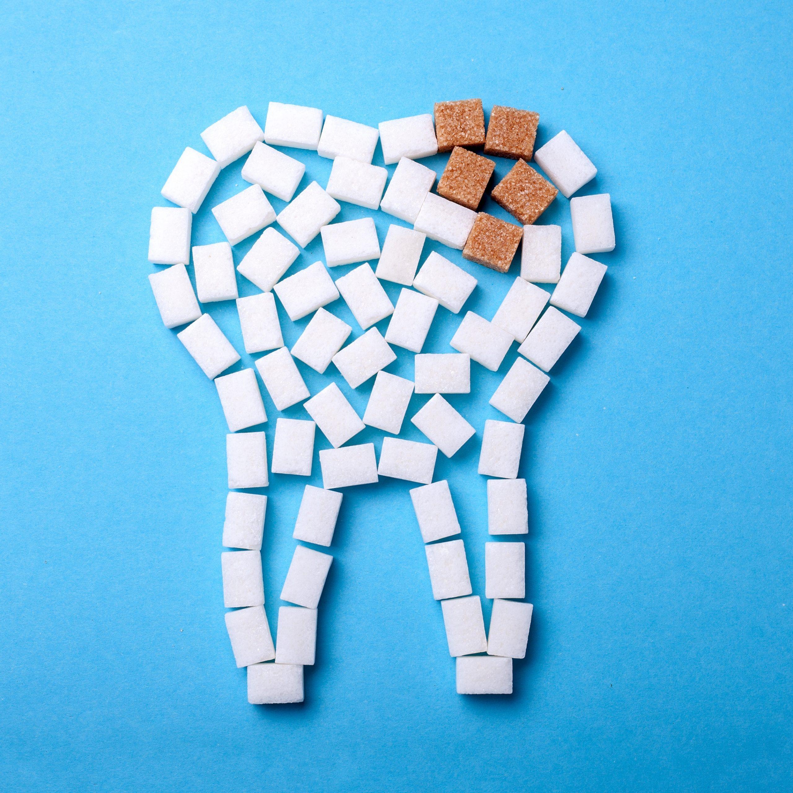 Zahnfleischprobleme und Parodontitis werden nicht nur durch eine mangelnde Pflege, sondern auch durch spezielle Nahrungsbestandteile und eine ungesunde Ernährungsweise (Zucker, Säure etc.) verursacht.