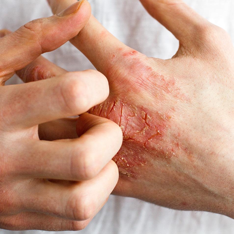Chronische Handekzeme können Betroffene über Jahre quälen, sind mitunter hartnäckig gegen Behandlungsversuche und beeinträchtigen Betroffene schwer.