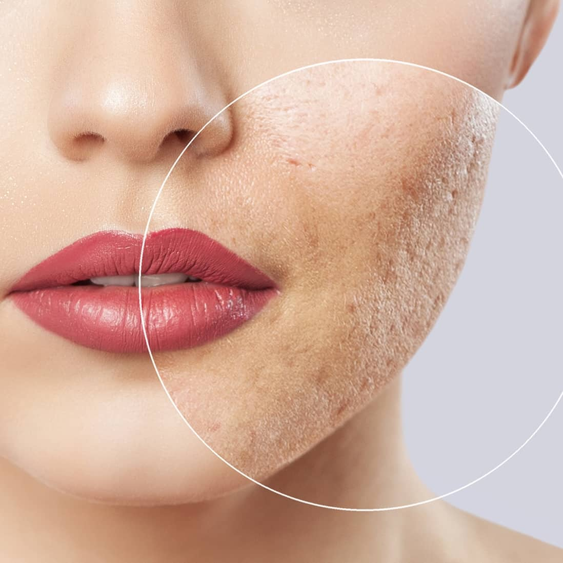 Die Naturheilkunde bietet verschiedene Methoden, um Narben nahezu verschwinden zu lassen