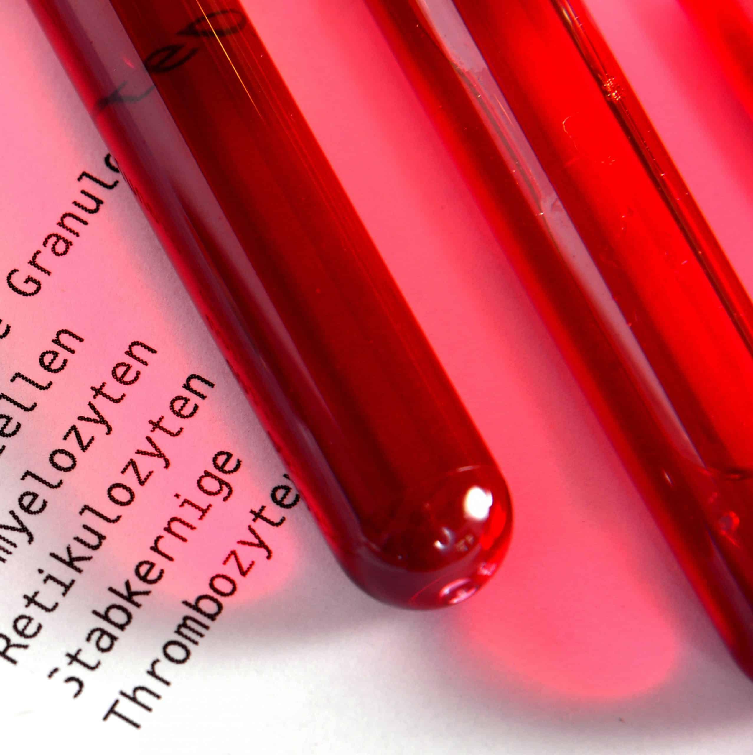 Röhrchen für Blutanalyse