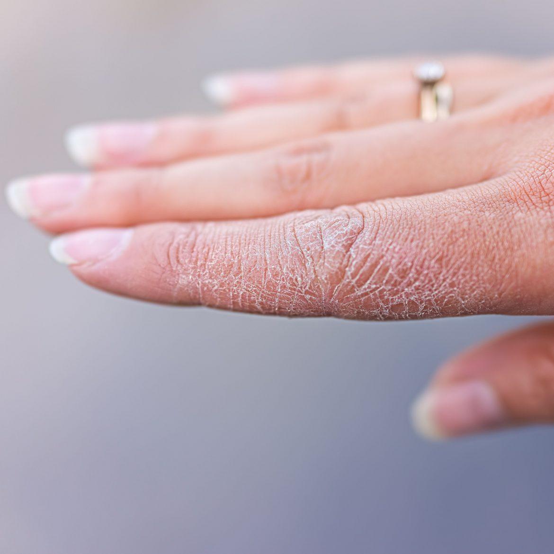 Intensivierte Handhygiene in der Coronapandemie ist zwar unverzichtbar, sie birgt aber ein erhöhtes Risiko für Handekzeme.