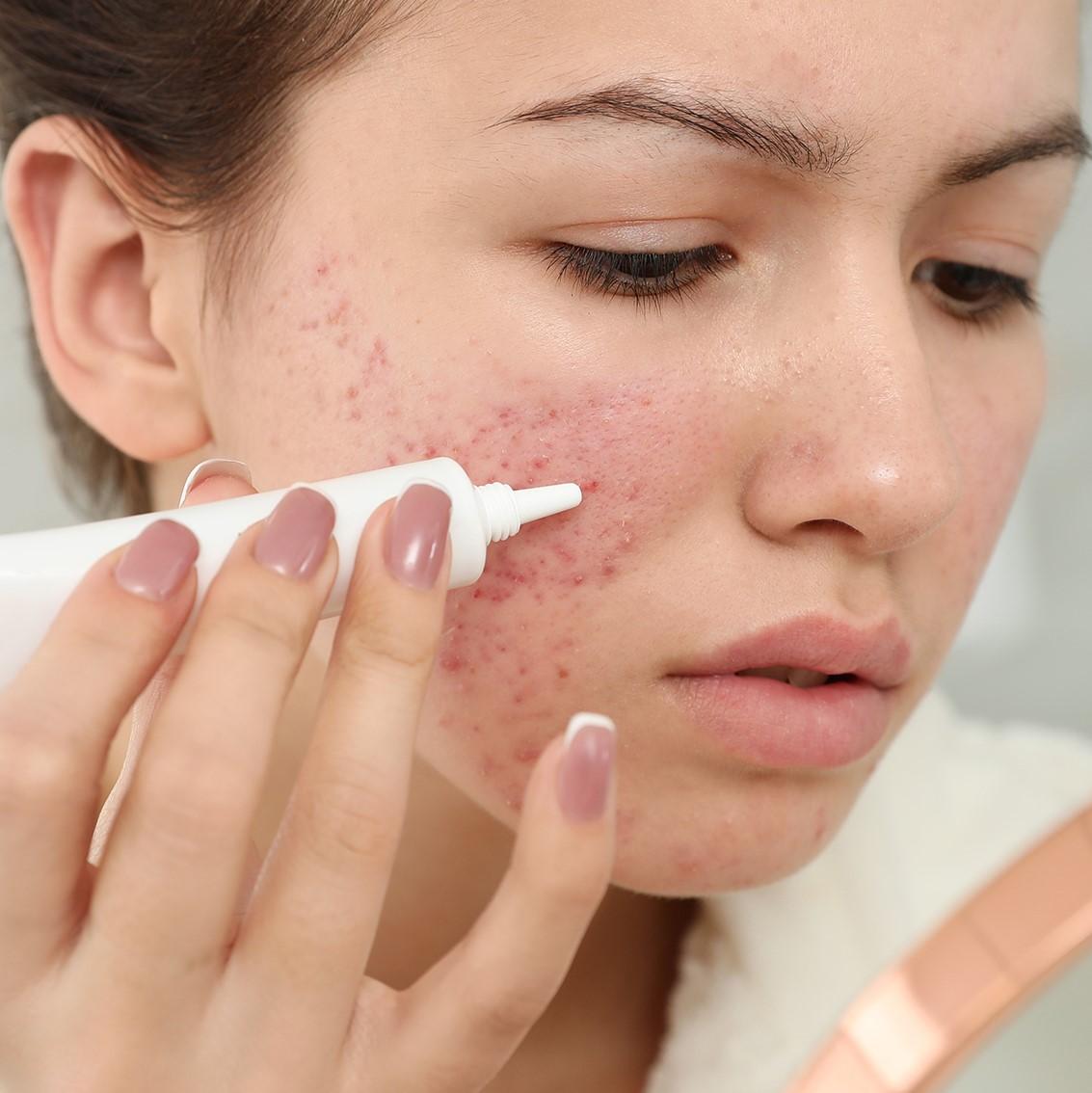 Die Alltagsmaske ist eine wichitge präventive Coroamaßnahme. Doch die Maske wird für Viele zu einem (Haut-)Problem, je öfter und länger sie getragen wird.